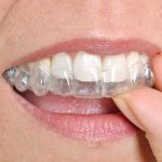Top 3 Benefits of Using Invisalign on Teeth